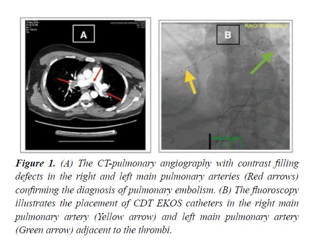 cardiovascular-thoracic-surgery-contrast-filling