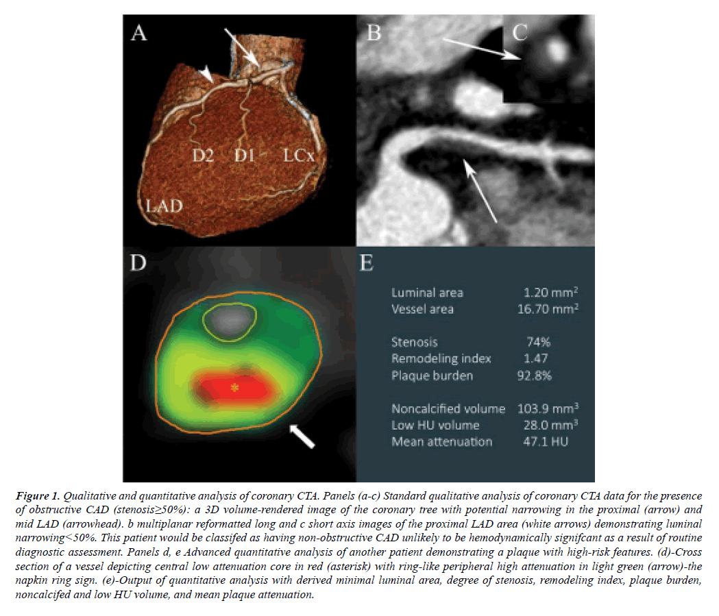 cardiovascular-thoracic-surgery-coronary-CTA