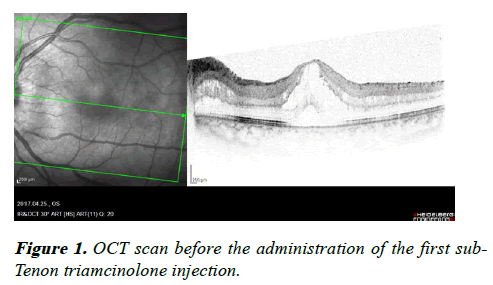 clinical-ophthalmology-Tenon