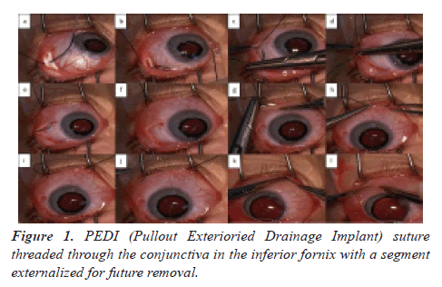 clinical-ophthalmology-fornix