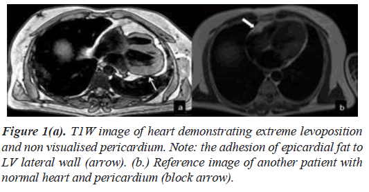 current-cardiology-heart