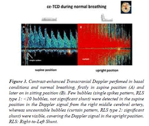 current-trends-cardiology-Doppler