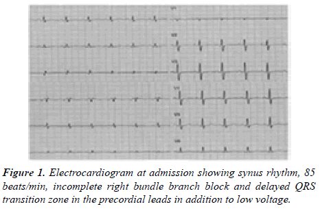 current-trends-cardiology-electrocardiogram