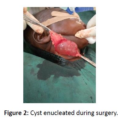 otolaryngology-online-journal-surgery