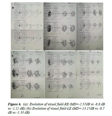 Ophthalmology-Case-<a target='_blank' href='https://www.alliedacademies.org/scientific-journals/evolution-2872.html'>Evolution</a>