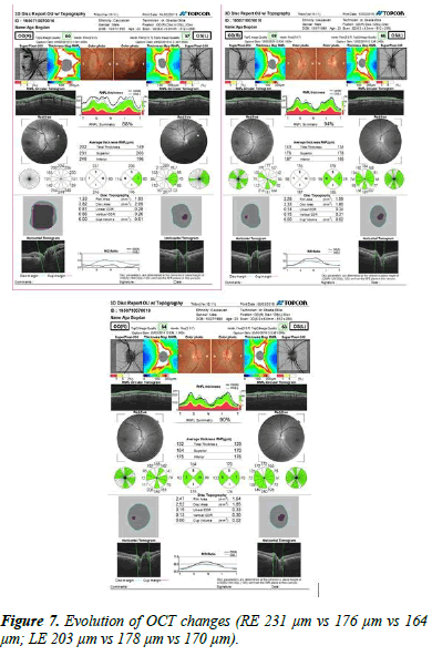Ophthalmology-Case-OCT