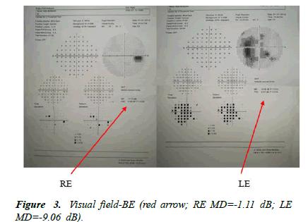 Ophthalmology-Case-Visual