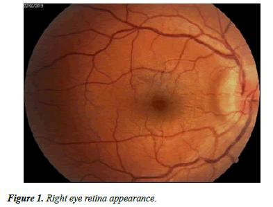 Ophthalmology-Case-retina