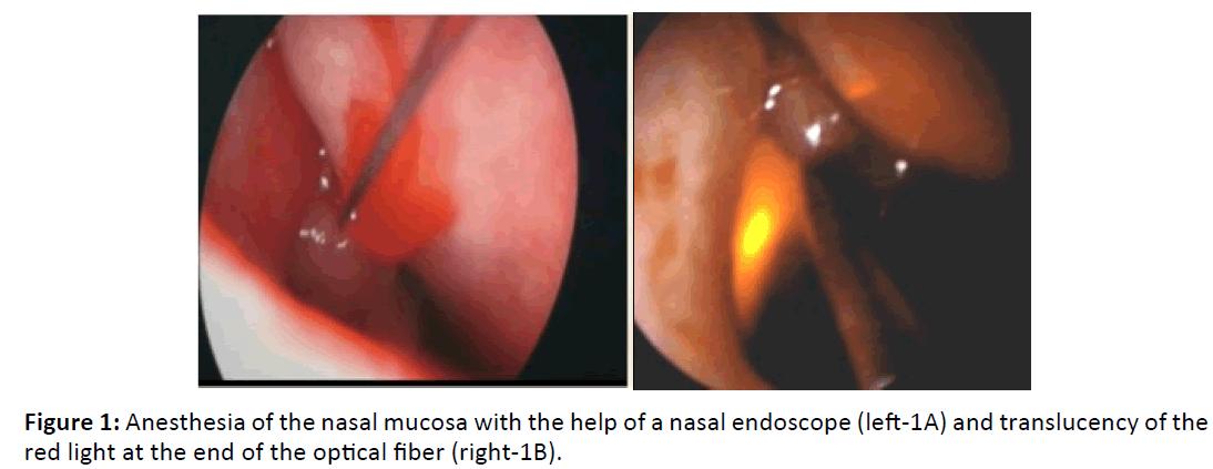 Otolaryngology-Anesthesia