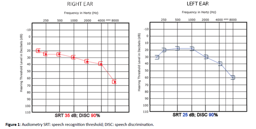 Otolaryngology-Audiometry