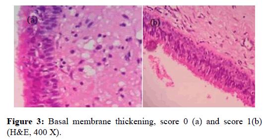 Otolaryngology-Basal-membrane