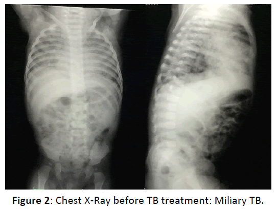 Otolaryngology-Chest-X-Ray