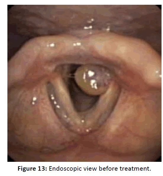 Otolaryngology-Endoscopic
