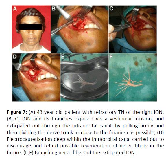 Otolaryngology-Infraorbital-canal