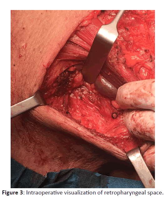 Otolaryngology-Intraoperative-visualization