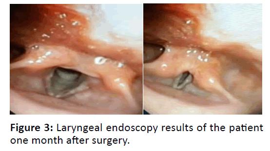 Otolaryngology-Laryngeal-endoscopy