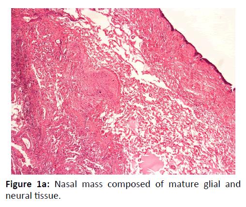 Otolaryngology-Nasal-mass-composed
