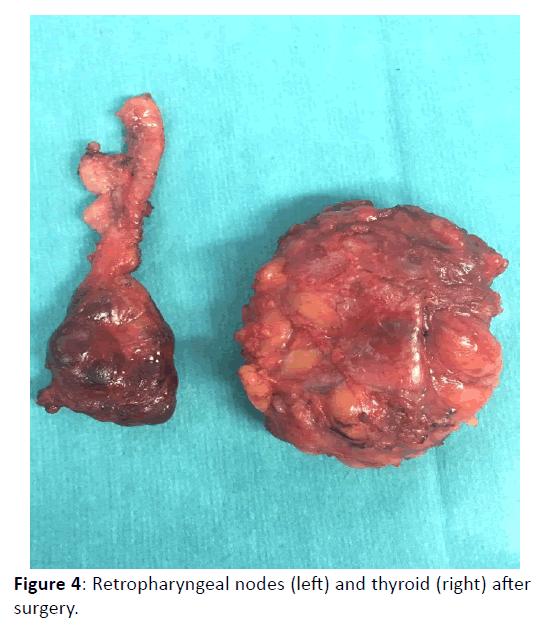 Otolaryngology-Retropharyngeal