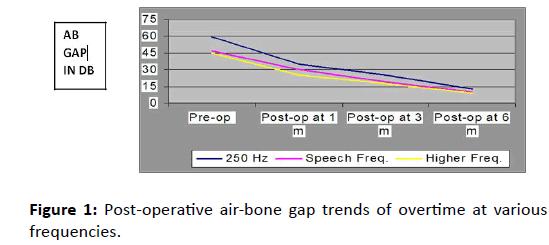 Otolaryngology-air-bone-gap