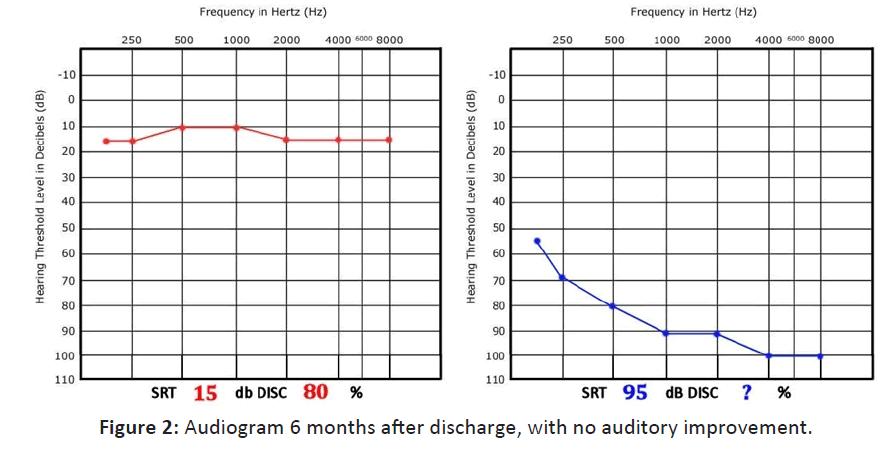 Otolaryngology-auditory