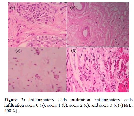 Otolaryngology-cells-infiltration