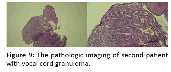 Otolaryngology-cord-granuloma