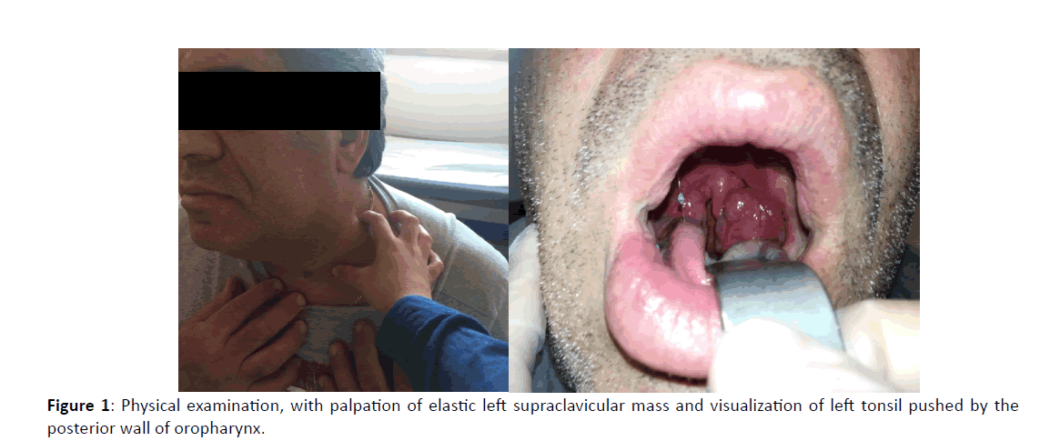 Otolaryngology-elastic-left