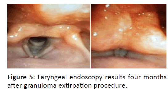 Otolaryngology-extirpation-procedure