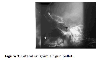 Otolaryngology-gun-pellet