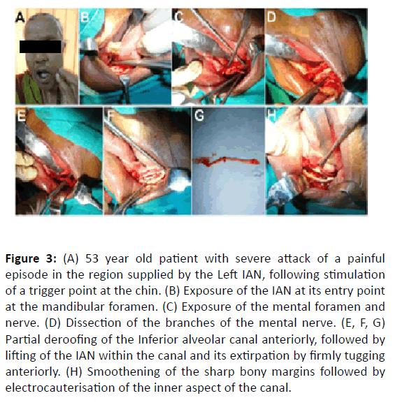 Otolaryngology-inner-aspect