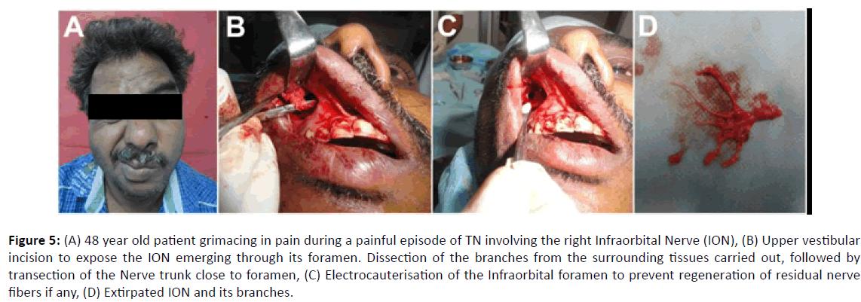 Otolaryngology-old-patient