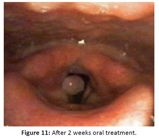 Otolaryngology-oral-treatment