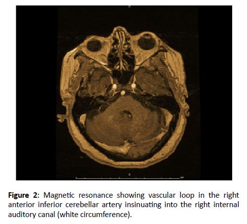 Otolaryngology-vascular