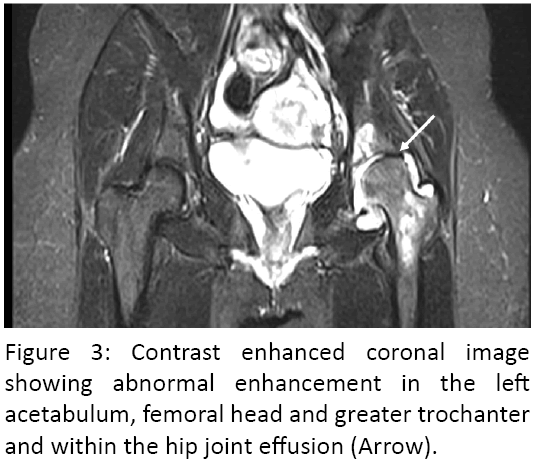 advanced-materials-science-research-coronal-acetabulum-femoral