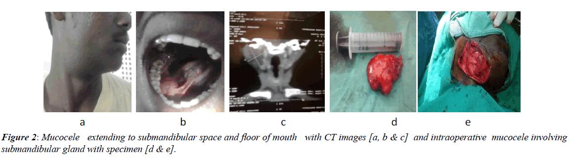 advanced-surgical-Mucocele-extending