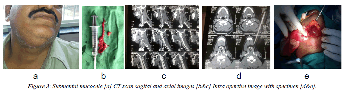 advanced-surgical-scan-sagital