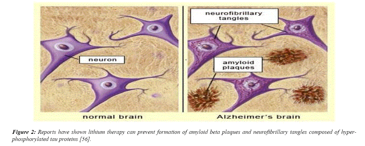 advances-cell-science-neurofibrillary-tangles