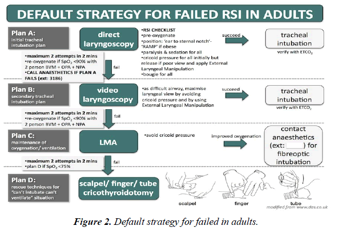 anesthetics-anesthesiology-Default-strategy-failed-adults