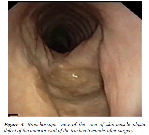 annals-cardiovascular-Bronchoscopic-view