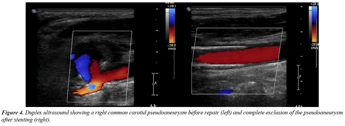 annals-cardiovascular-Duplex-ultrasound