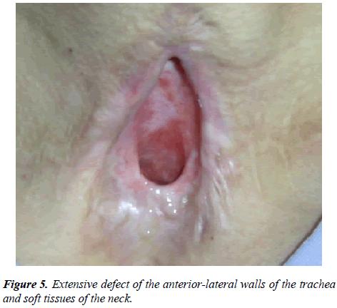 annals-cardiovascular-Extensive-defect