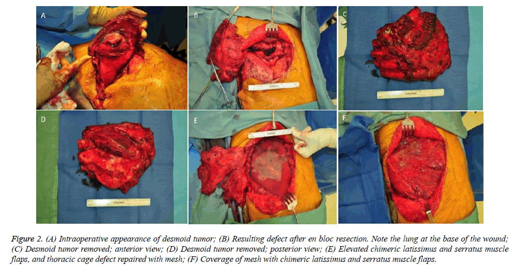 annals-cardiovascular-Intraoperative