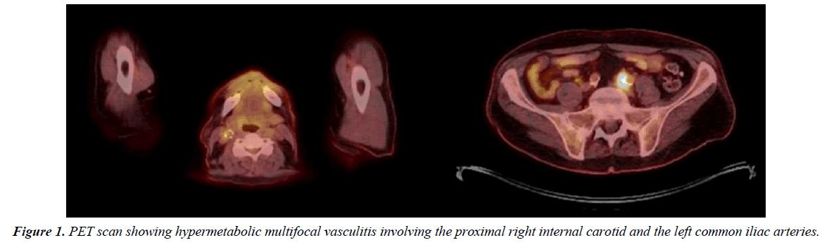 annals-cardiovascular-PET-scan
