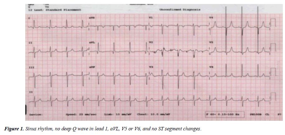 annals-cardiovascular-Sinus-rhythm
