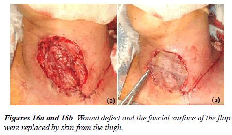 annals-cardiovascular-Wound-defect