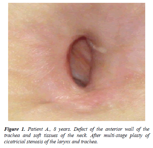 annals-cardiovascular-anterior-wall