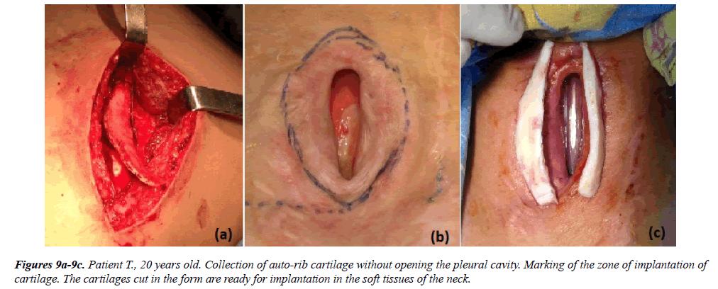 annals-cardiovascular-cartilages-cut