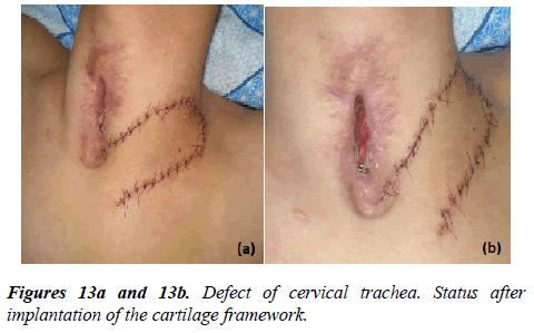 annals-cardiovascular-cervical-trachea
