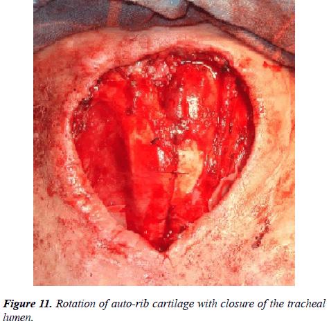 annals-cardiovascular-closure-tracheal