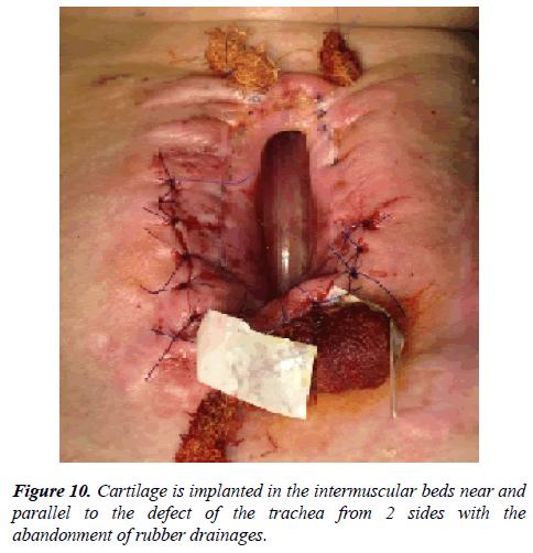 annals-cardiovascular-intermuscular-beds